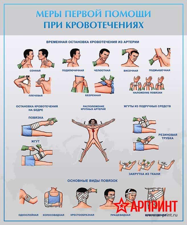 stend-mery-pervoj-pomoshhi-pri-krovotecheniyax-min